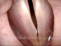 Vocal nodules (2 of 10)