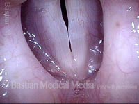 Vocal nodules (3 of 10)