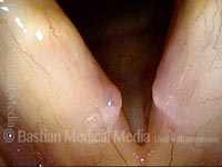 Vocal nodules (1 of 4)