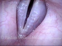 Vocal nodules (1 of 3)
