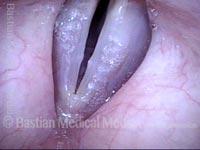 Vocal nodules (1 of 3)