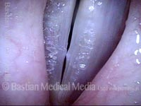 Vocal nodules (2 of 3)
