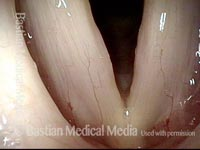 Vocal nodules, before surgery (1 of 4)