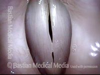 Vocal nodules, before surgery (2 of 4)