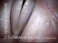 Vocal nodules, after surgery (4 of 4)