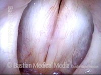 Vocal nodules (3 of 4)