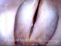 Vocal nodules (4 of 4)