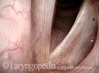 Left vocal cord paralysis (1 of 4)