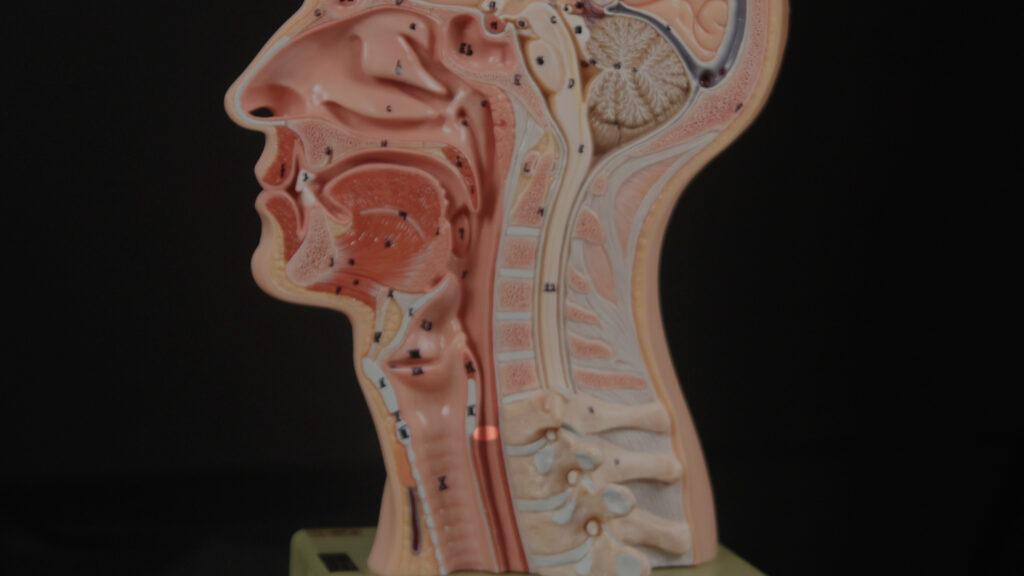 Retrograde Cricopharyngeus Dysfunction Laryngopedia