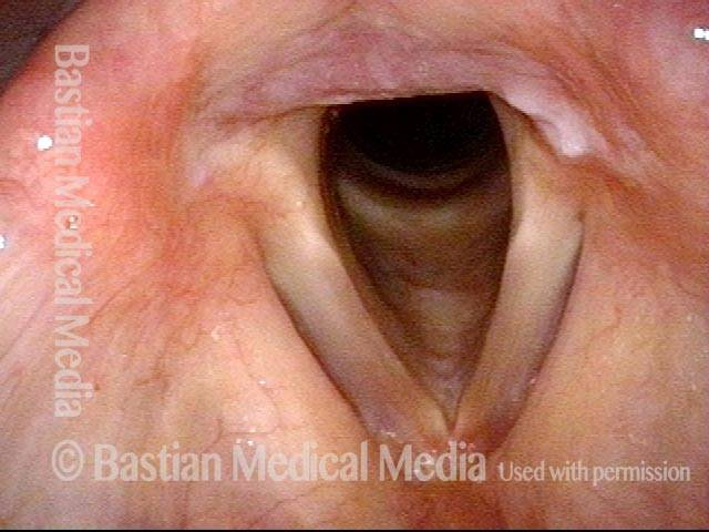 arytenoid ulcer