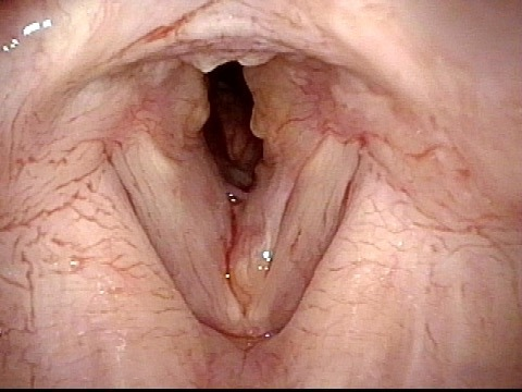 narrowed airway and protruding lesions