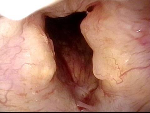 yellowish amyloid deposits
