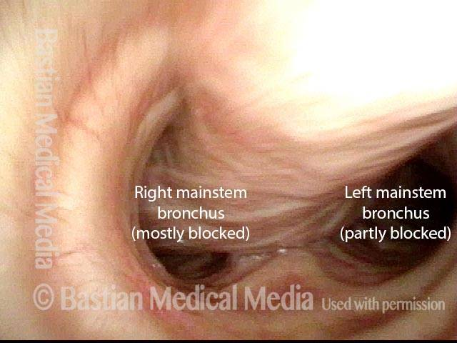 membranous tracheal wall bulges inward in the lower trachea