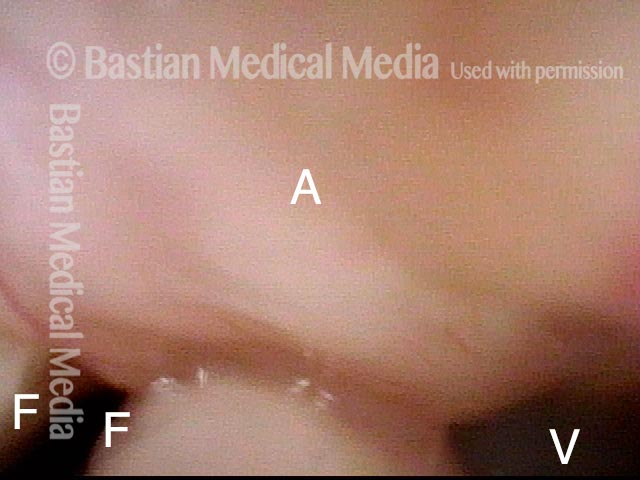 mass overlies most of both vocal cords