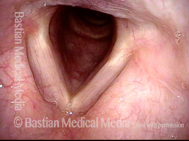 Vocal cords in normal breathing position