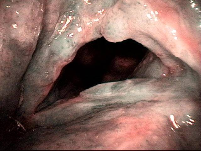 vascular stippling