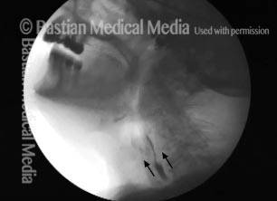 x-ray of swallowed barium discharging into the hypopharynx