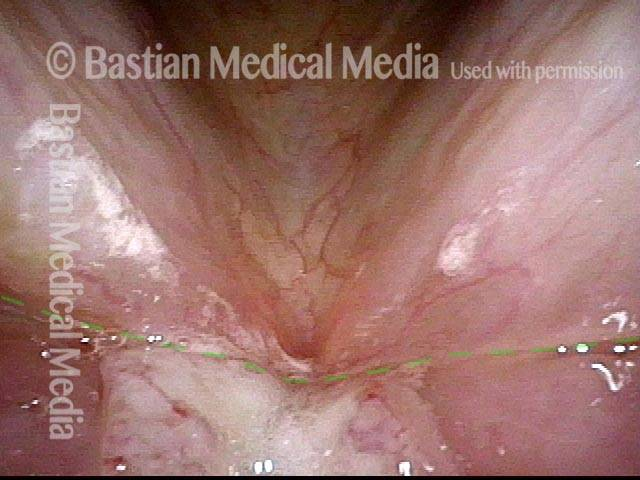tumor does not cross the plane of the ventricle