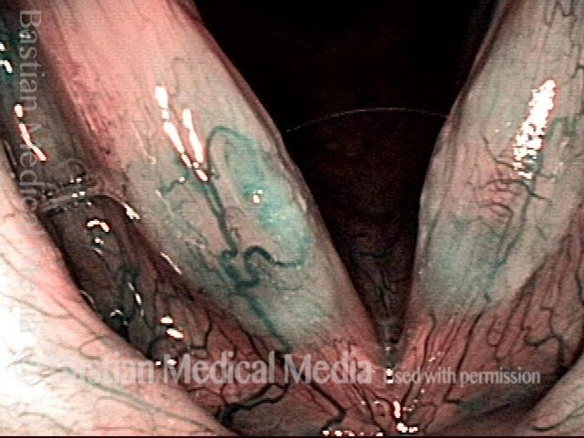 Glottic sulcus in narrow-band illumination