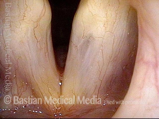 Glottic sulcus and glottic furrow