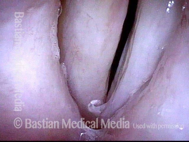contours of the vocal cords are not perfectly normal