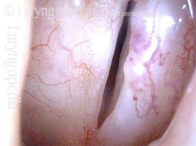 nly the left vocal cord mucosa is flexible