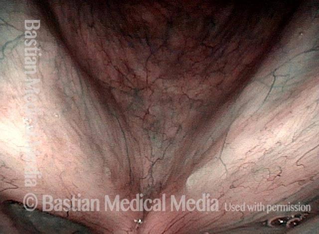 no stippled or other abnormal vascular marks